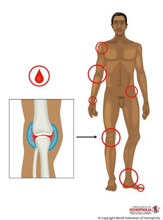 Hemofilia w ilustracjach