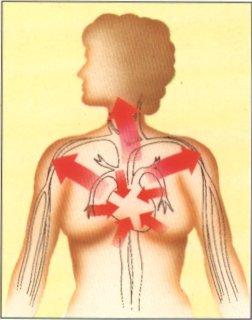 sylwetka człowieka z zaznaczonymi strefami bólu